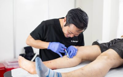 Why Is It Important to Choose a Vein Clinic Midtown That Offers Minimally-Invasive Treatments?
